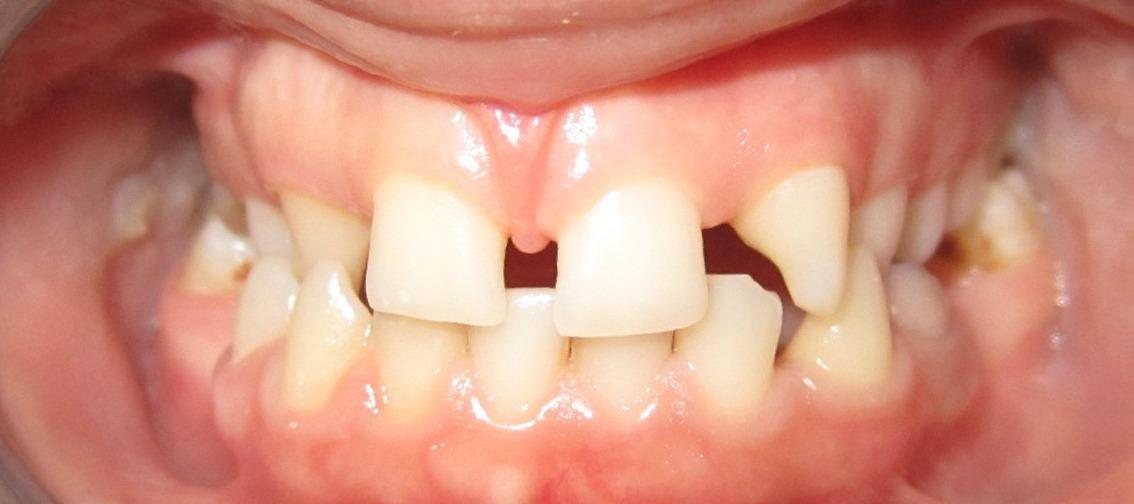 Eksik Dişler Diğer Sağlam Dişleri de Kaybetme Riskini Ortaya Çıkarıyor