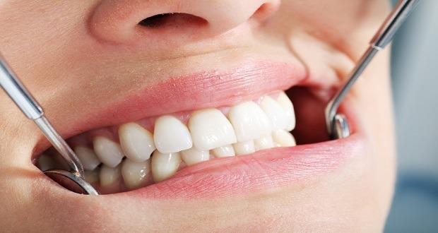 Eksik Dişler Kilo Almaya Sebep Olabiliyor
