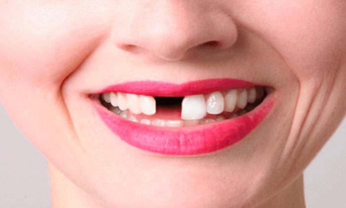 Eksik Dişler Çiğneme Fonksiyonu Azalıyor